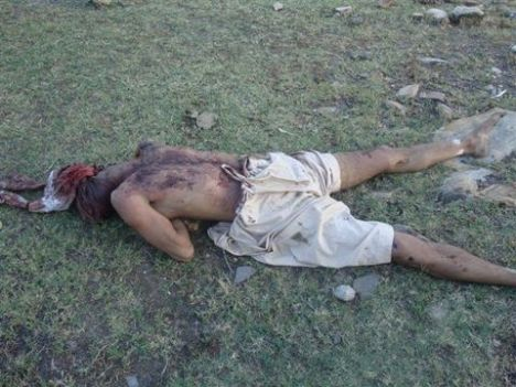 Taliban killed there own wounded fighter